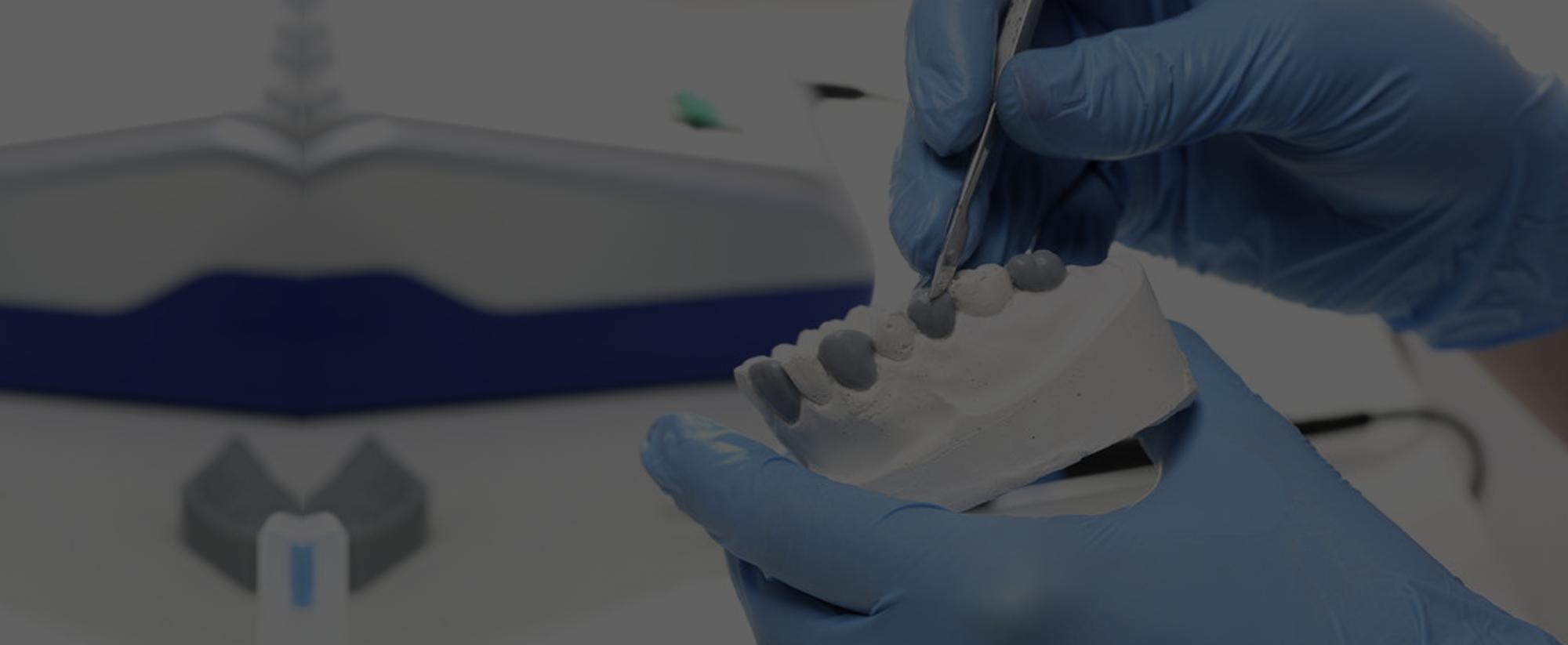 implantes-dentales-ciudad-real