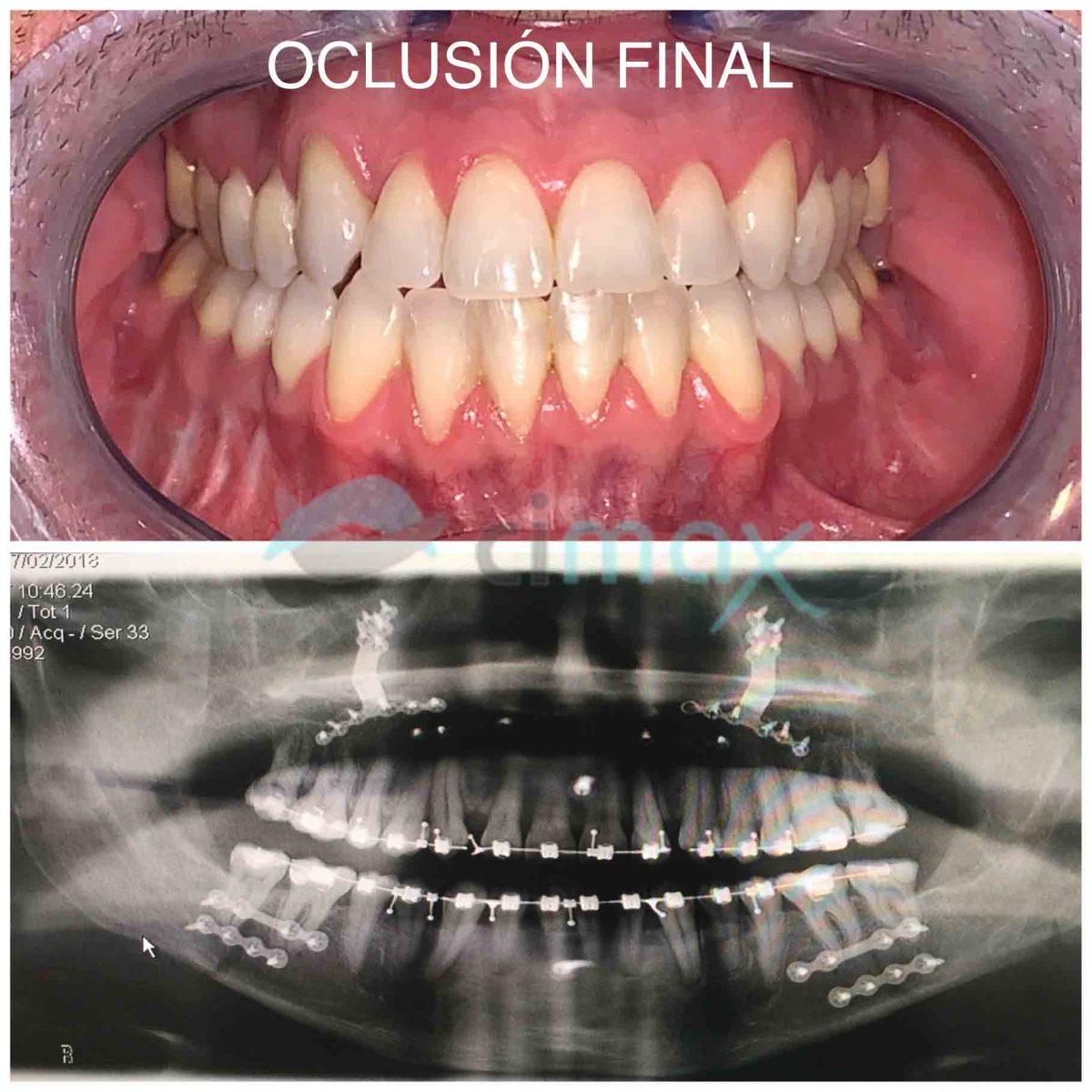conclusion-final-ortognatica