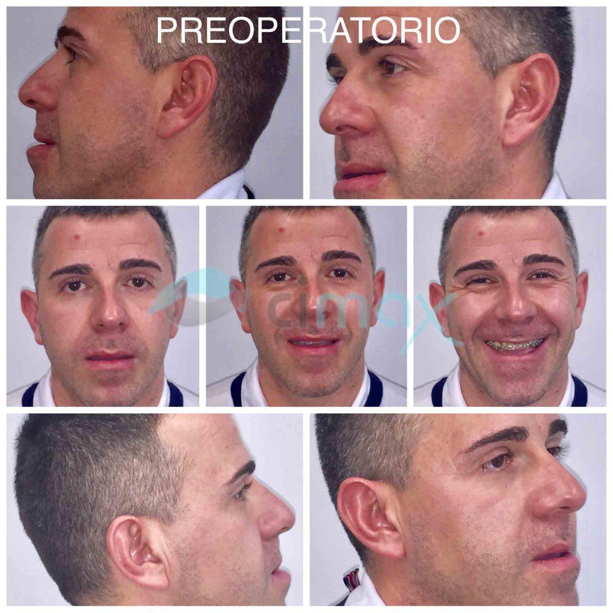 preoperatorio-ortognatica